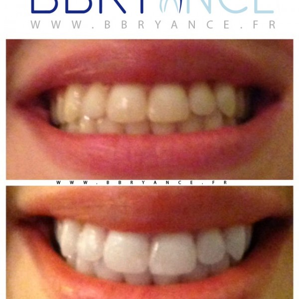 dents-blanche-kit